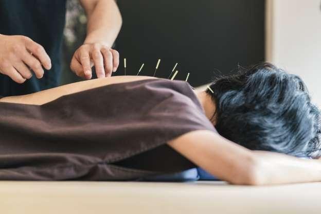 El guardia civil había solicitado poder compatibilizar su trabajo con la práctica privada de la acupuntura.